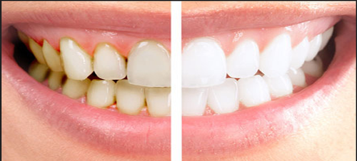 Teeth Whitening Cost In Pune Archives Deccan Dental Clinic Pune