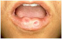 Lip on clear bump Mucocoele of